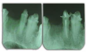 Paciente realizou tratamento de canal por finalidade protética