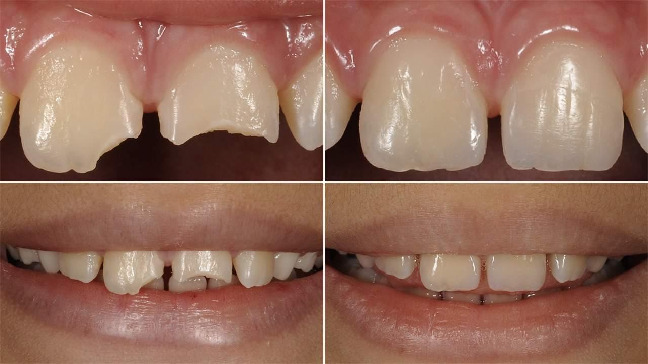 Resina para Dentes Quebrados