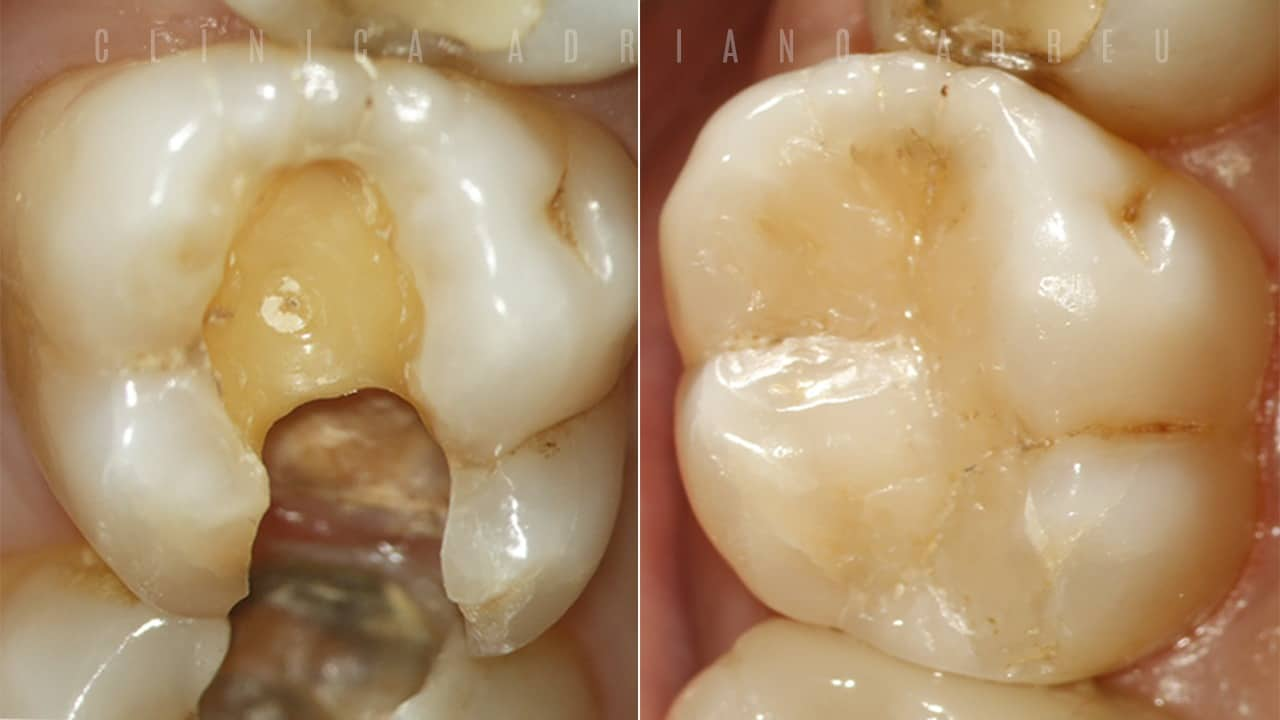 Restauração de dente com cárie