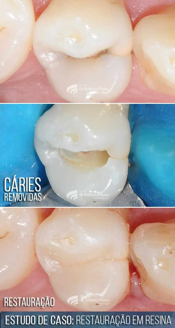 Restauração de Dentes com cáries