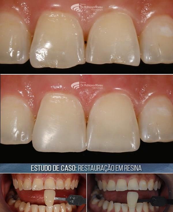 Restauração em Resina de Dentes Centrais