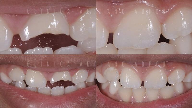 tratamento-de-dentes-quebrados-em-criancas-com-resina