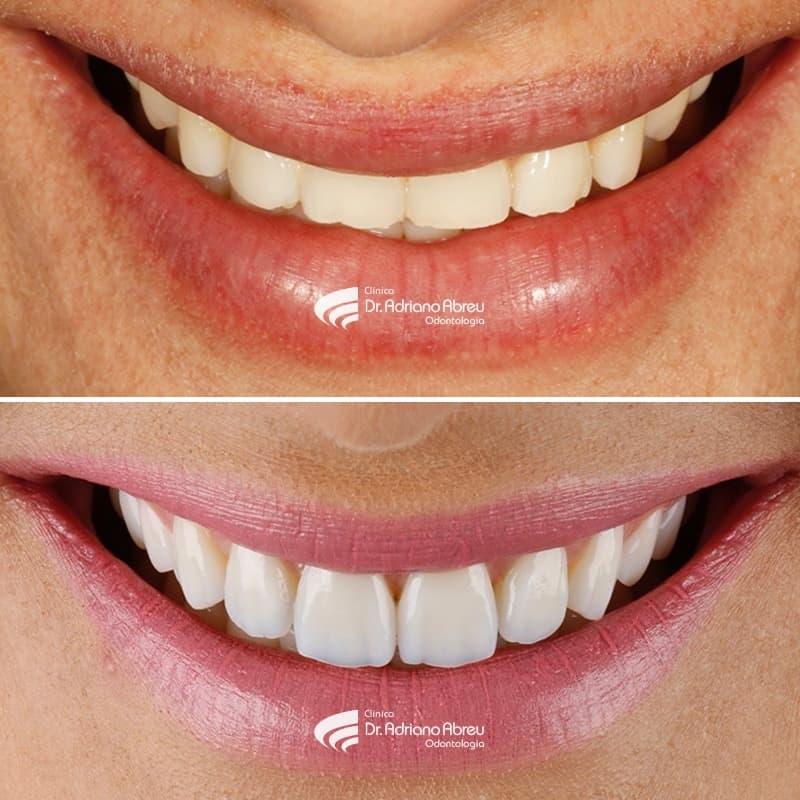 Digital Smile Design - Planejamento Digital do Sorriso