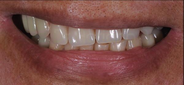 2incial-final-dento-gengival
