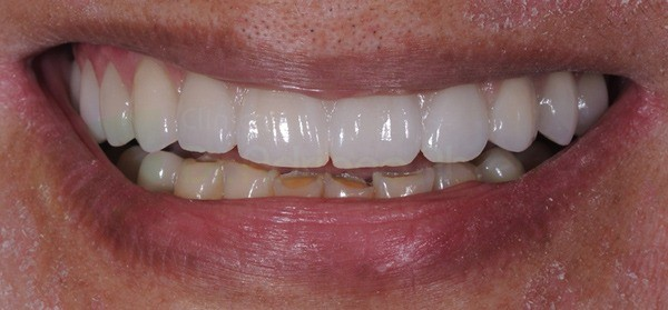 incial-final-dento-gengival