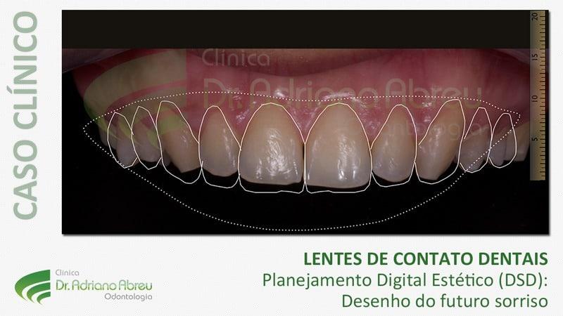facetas lentes de contato dentais 9