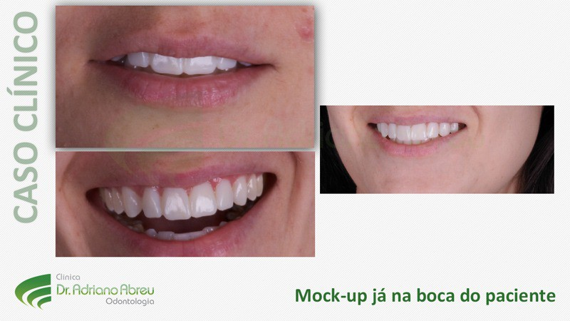 Mock-up já na boca do paciente