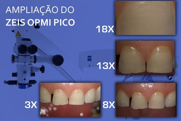ampliacao-do-zeiss-opmi-pico