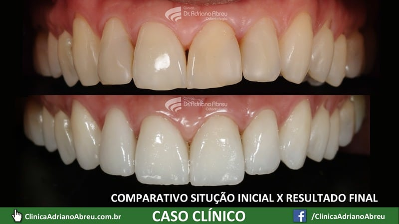 14-comparativo-situacao-inicial-resultado-final