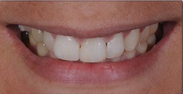 clareamento-dental-3-final