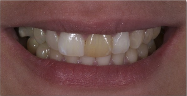 clareamento-dental-3-inicial