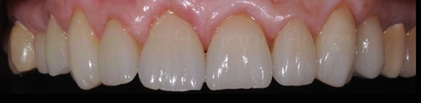 galeria-de-sorrisos-final-cerec