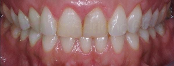 lentes-de-contato-dentais-inicial2