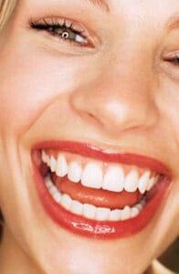 A beleza de um sorriso perfeito se revela nos detalhes