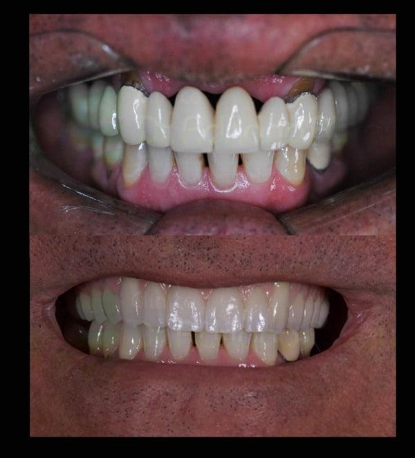 Black spaces e demais aspectos estéticos da gengiva solucionados com a próteses dento-gengival em cerâmica