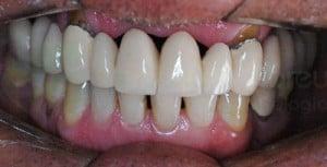 os chamados black-spaces são espaços entre os dentes e as gengivas que prejudicam muito a estética do sorriso
