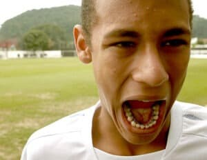 O aparelho lingual fica escondido atras do sorriso do paciente. No caso do Neymar, fez as movimentações necessárias, mas com a discrição que ele precisava