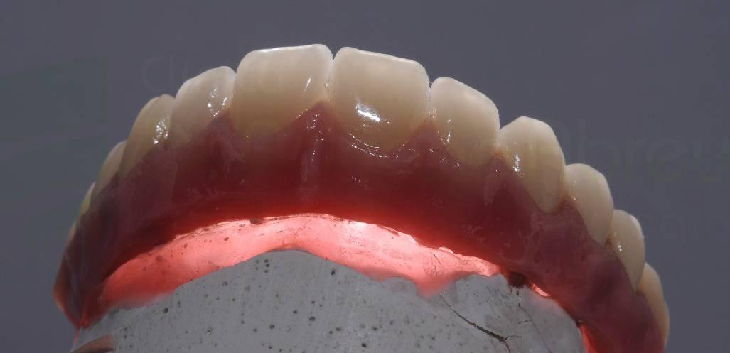 Detalhe da translucidez de uma prótese em cerâmica