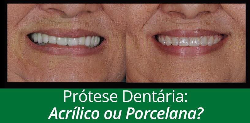 protese-dentaria-acrilico-ou-porcelana