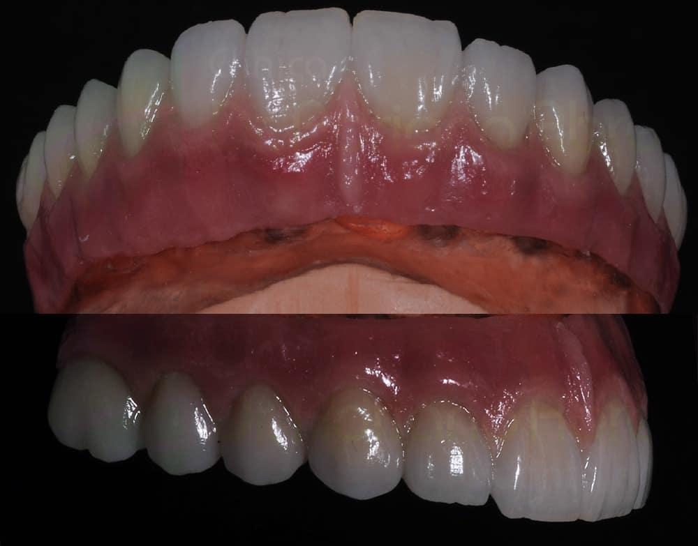 Detalhe de Prótese em porcelana pronta, repare na sua similaridade com dentes naturais