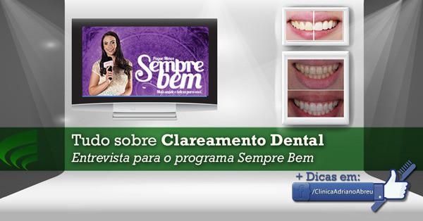 tudo-sobre-clareamento-dental-entrevista-para-o-programa-sempre-bem