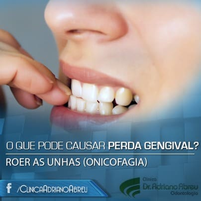 roer-as-unhas-onicofagia