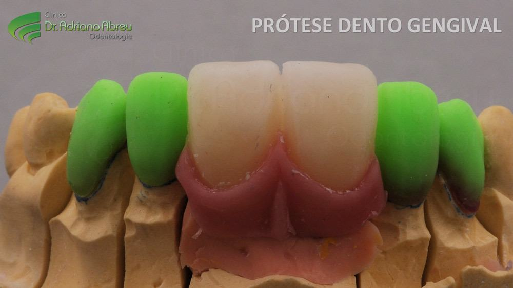 protese-dento-gengival
