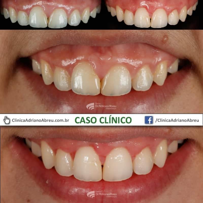 Toxina botulínica na odontologia!