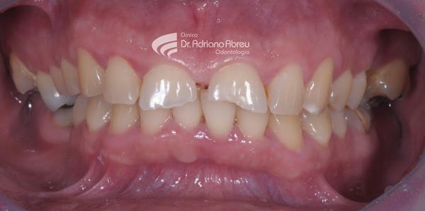 Desgaste dentário provocado pelo bruxismo