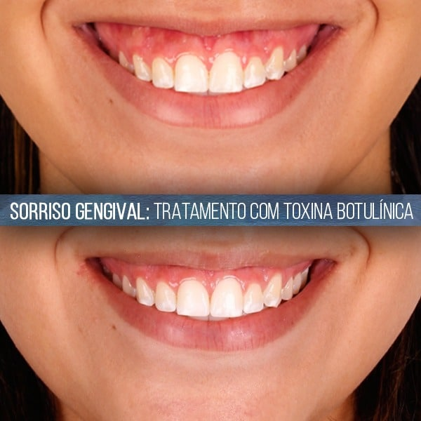 tratamento-de-sorriso-gengival-com-toxina-botulinica
