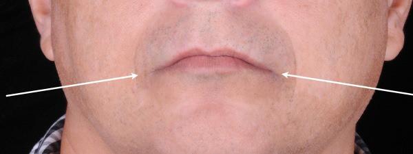 Comissura labial, característica da síndrome de combinação