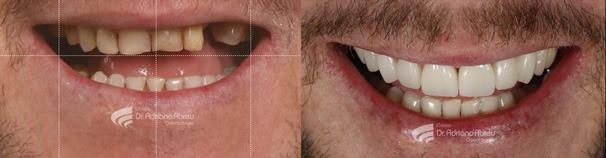 Um implante dentário bem feito envolve muitas nuances