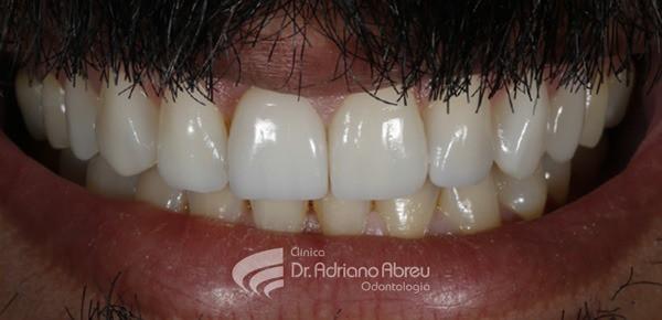 f caso skyn concept odontogia estetica
