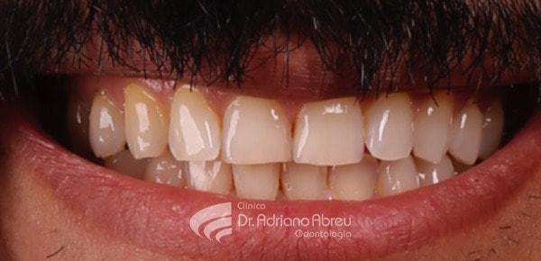 i caso skyn concept odontogia estetica