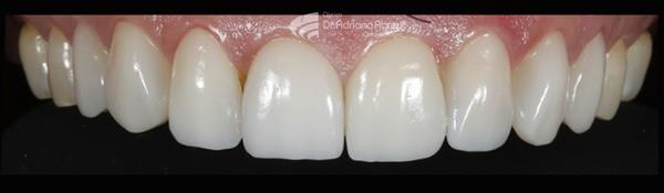skyn concept intra oral final