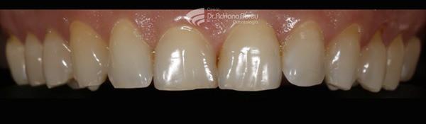 skyn concept intra oral inicio