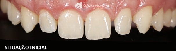intraoral-skyn-concept-situacao-inicial