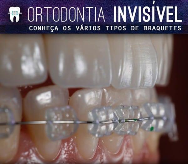 ortodontia-invisivel-conheca-os-braquetes-esteticos