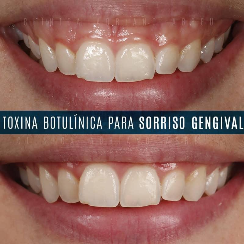 Toxina botulínica utilizada para corrigir sorriso gengival