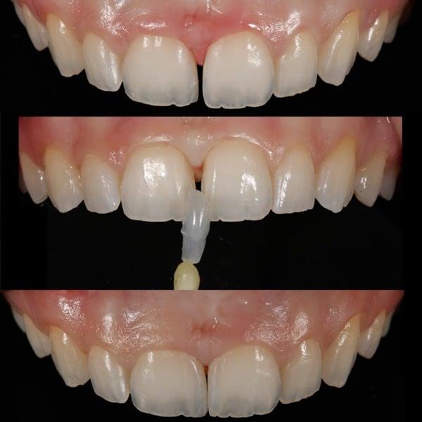 Fragmentos Dentários em Porcelana