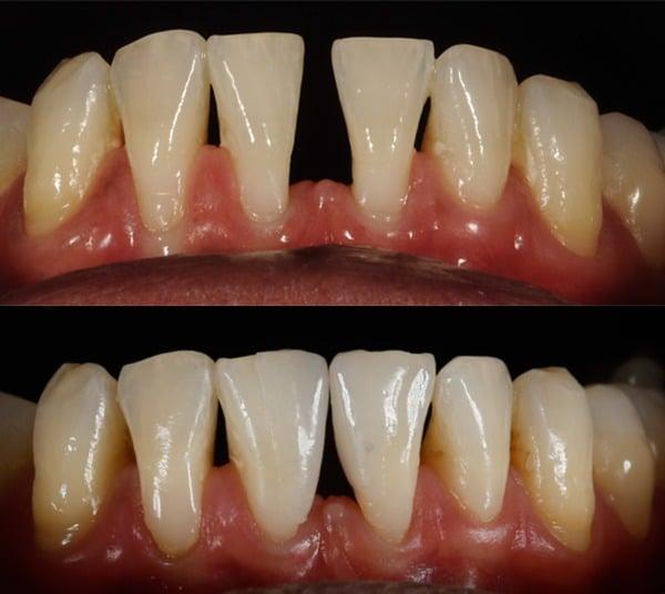 Para que servem os fragmentos dentários