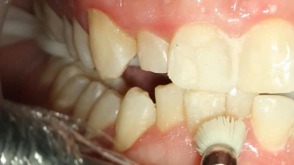Limpeza da região onde será a montagem do aparelho dentário