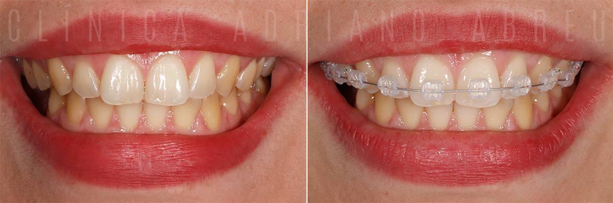 Montagem de aparelho dentário: antes e depois