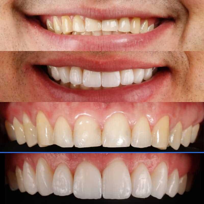 Lentes de contato dental antes e depois