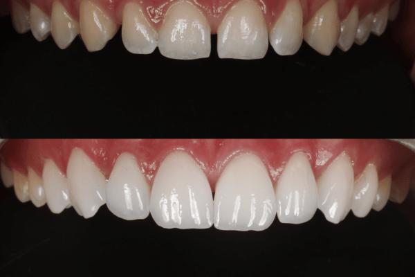 Lentes de contato dental antes e depois Fortaleza