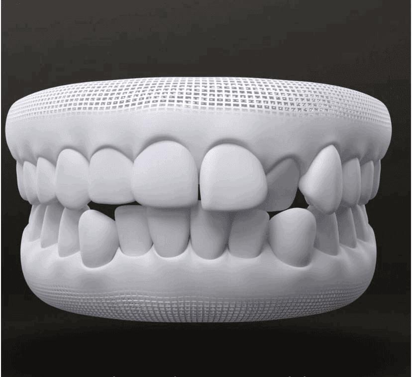 Tratamento para alinhar os dentes com invisalign