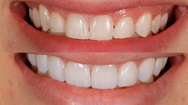 CAS DENTES TORTOS tratamento com laminados ceramicos 1