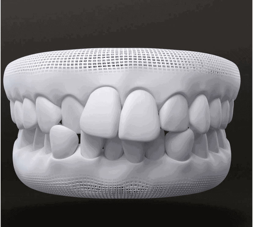 Tratamento para dentes apinhados com invisalign