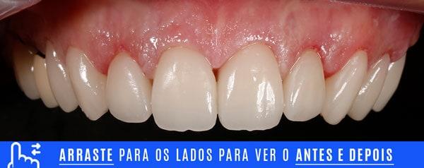 FINALINTRA dentes com resinas escuras ou envelhecidas