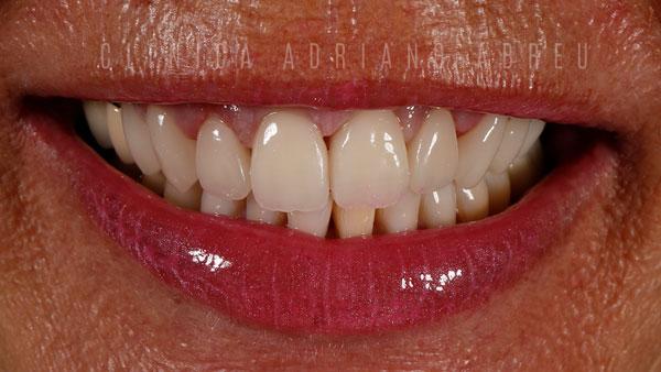 FINALsorriso dentes com resinas escuras ou envelhecidas